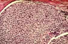 Индийские учёные обнаружили, что аборты увеличивают риск рака груди в шесть раз