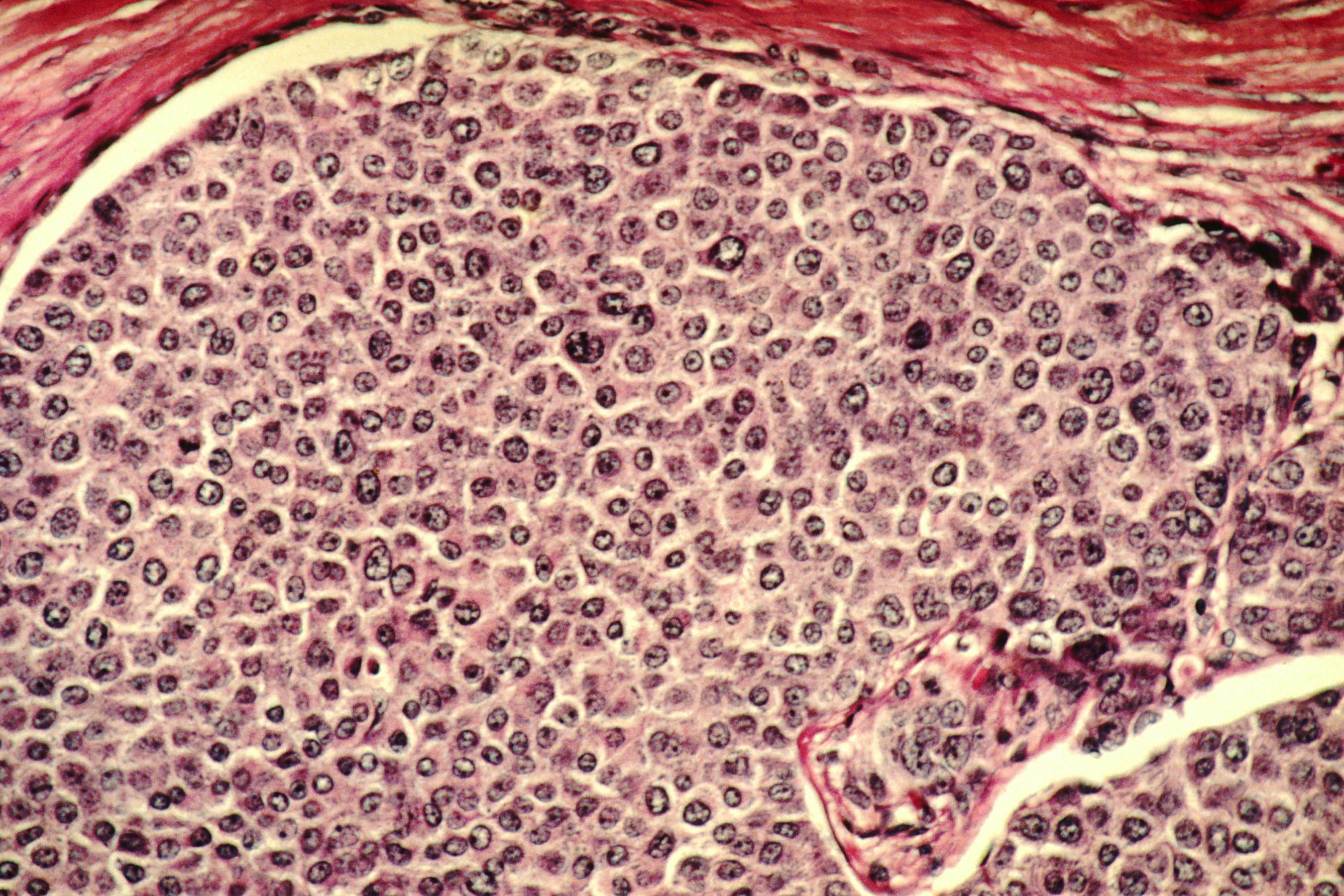 Фото индийская женщина раком 28 фотография